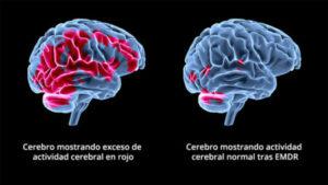 cerebro-emdr